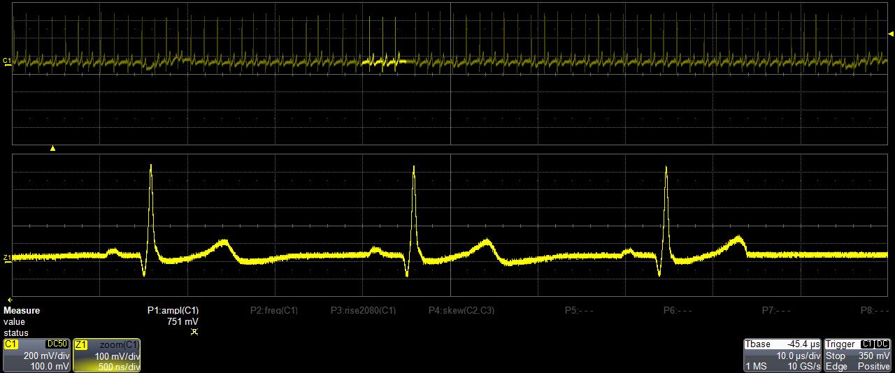 EKG Electrocardiography
